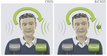 Audífonos Cros-Bicros - RV ALFA