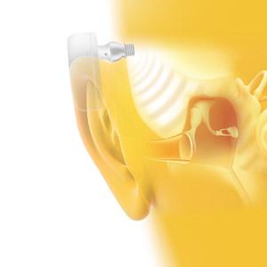 Audífonos Por Conducción Osea