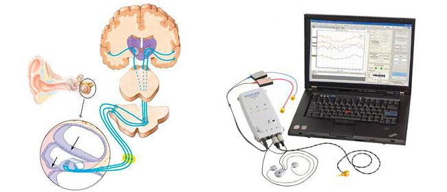 Electrofisiología: Cómo se evalúa