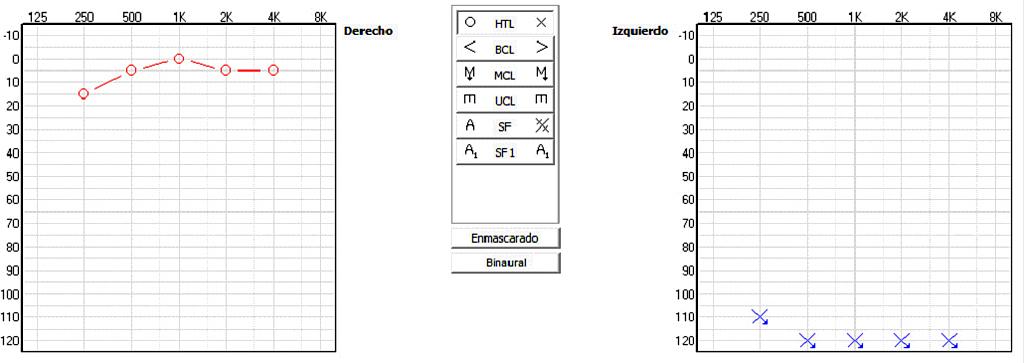 Audífonos Cros-Bicros